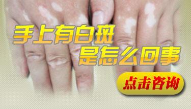 白癜风为何易在手部发病