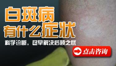 常见的手部白癜风症状