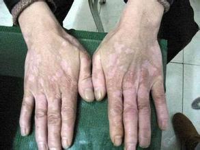 白癜风临床症状会有哪些呢?